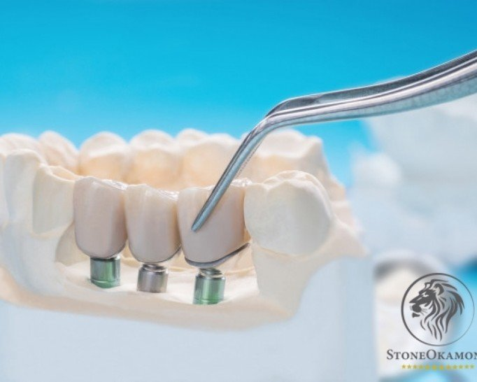How to sell dental implant in Brazil